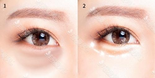 微细脂肪移植祛眼袋手术效果好吗