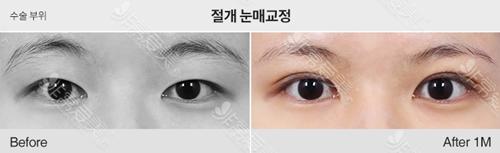 1MM韩国整形医院双眼皮手术效果图