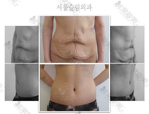 首尔slim外科腰腹赘皮修复真人案例