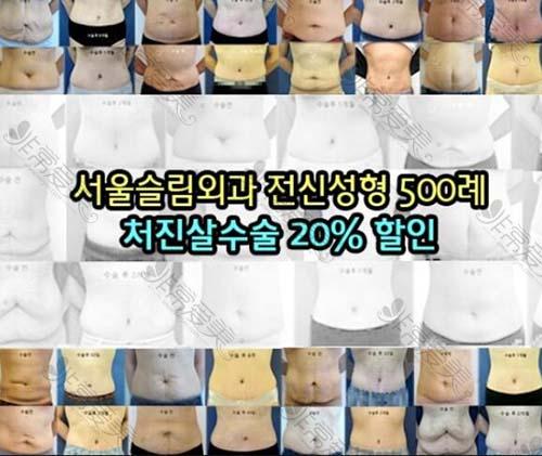韩国首尔slim外科下垂皮肉修复手术