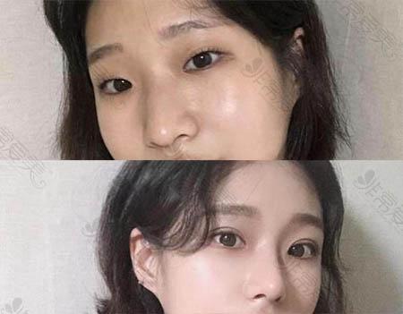 韩国1mm整形外科眼鼻整形前后对比