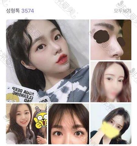 韩国1MM整形外科官网整形案例