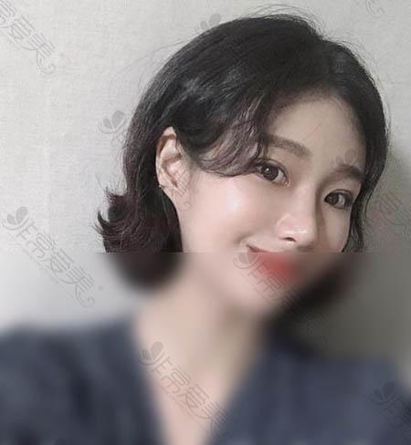 韩国1mm整形外科眼鼻手术术后效果
