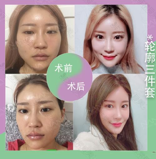 韩国娜娜NANA整形医院轮廓三件套案例