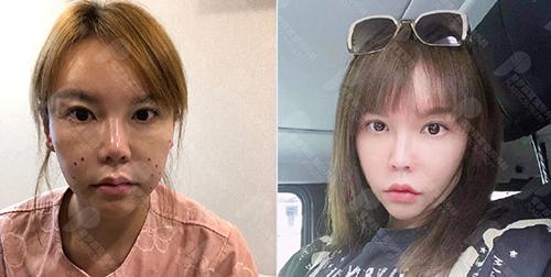 韩国普罗菲耳埋线提升前后提升瘦脸明显