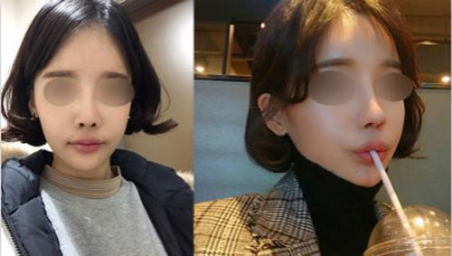 韩国Thenan自体肋软骨隆鼻真人案例