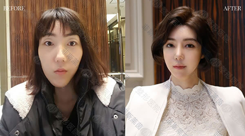 韩国菲斯莱茵整形医院面部轮廓+双鄂改善案例