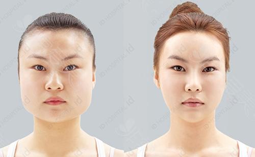 韩国ID整形医院面部轮廓案例