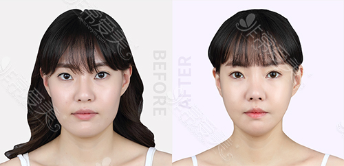 韩国原辰整形外科面部轮廓案例