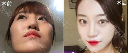 韩国美迪莹整形外科面部轮廓案例
