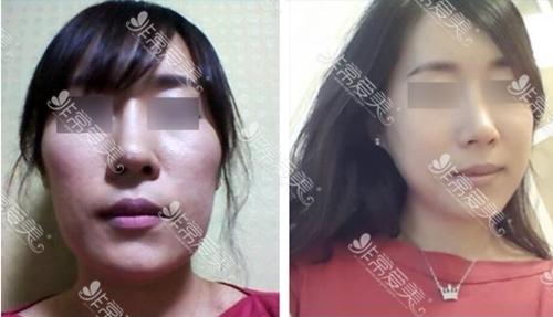 韩国431整形医院面部轮廓手术怎么样