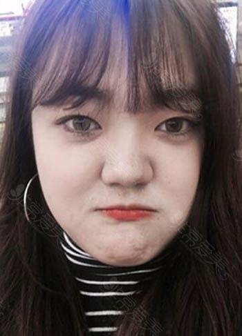 韩国普瑞美福鼻改善术前照片