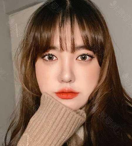 韩国普瑞美眼鼻矫正三个月照片