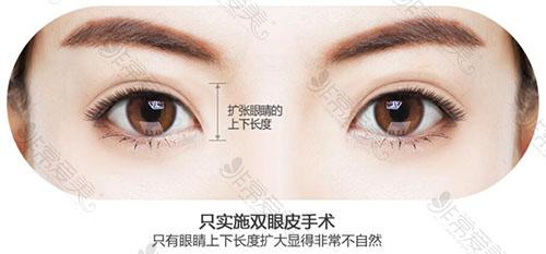 韩国普瑞美整形外科双眼皮整形方法