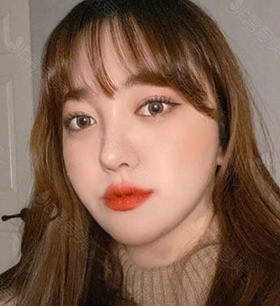 韩国普瑞美眼整形三个月照片