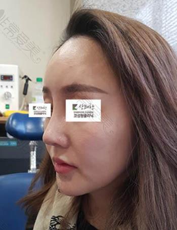 韩国清新整形外科朝天鼻修复术后效果