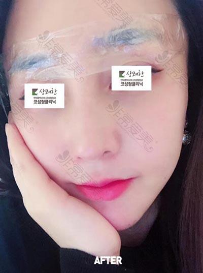 韩国清新整形外科鼻修复术后6个月