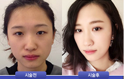 韩国111整形外科眼鼻综合案例对比效果