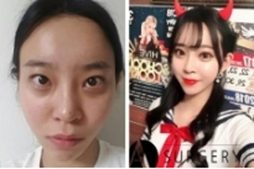 韩国DA整形医院双眼皮案例