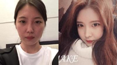 韩国美可整形李圣俊眼鼻面部填充前后对比照片