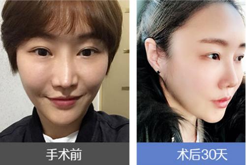 韩国医院面部脂肪填充对比