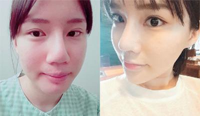韩国kowon整形外科鼻翼缩小前后对比