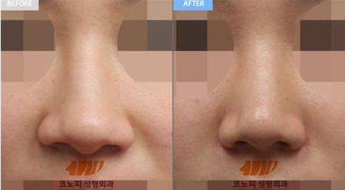 高诺鼻医院鼻翼缩小案例