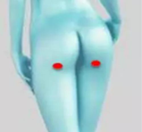 大腿吸脂后侧针口位置图