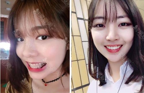 韩国齐娥整形女生戴牙套前后对比照