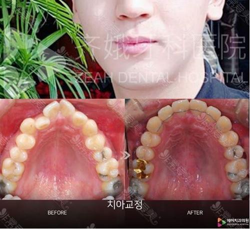 韩国牙齿矫正医院哪家好