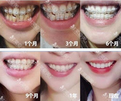 韩国齐娥牙科医院女生带牙套1~12月变化图