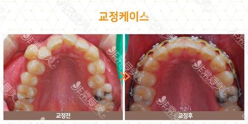 牙齿矫正前后对比效果图