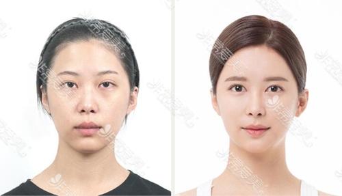 韩国清潭优整形外科眼修复+鼻综合整形效果图