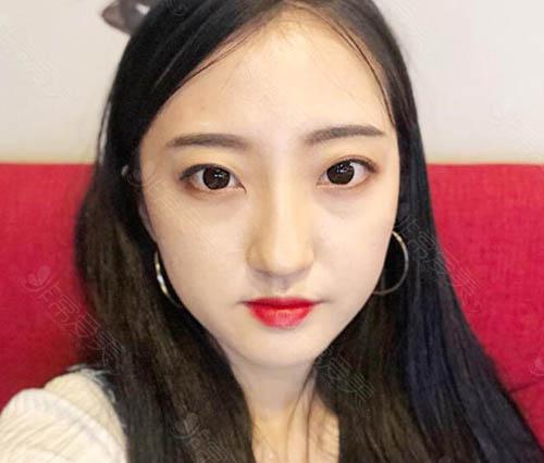 韩国NANA娜娜眼鼻整形术前