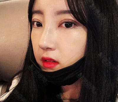 韩国nana医院眼鼻手术术后效果