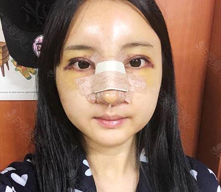 韩国娜娜整形外科眼鼻整形四天照片