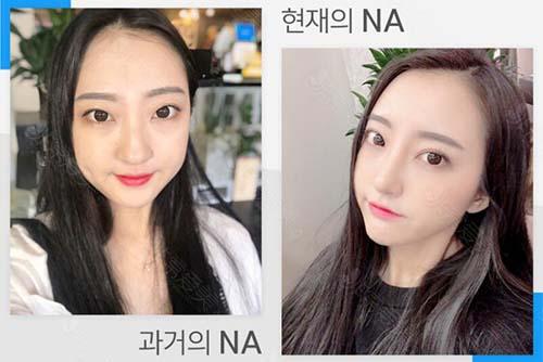 韩国NANA娜娜官网真人眼鼻整形案例