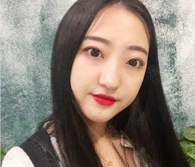 韩国娜娜整形外科眼鼻手术怎么样