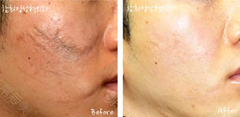 韩国Dr.ham's整形医院疤痕修复案例