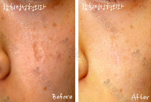 韩国Dr.ham's整形医院面部疤痕修复案例