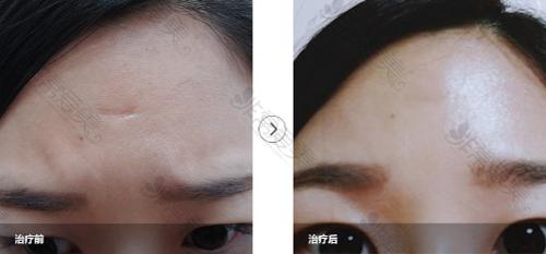 韩国陈整形医院凹陷疤痕修复案例