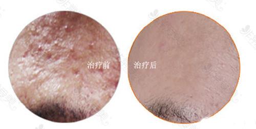 韩国童颜中心皮肤管理案例