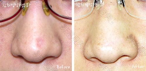 韩国Dr.ham's整形医院凹陷型疤痕修复案例