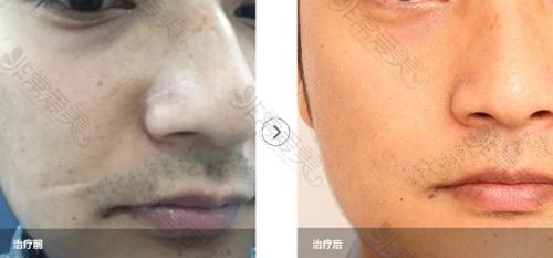 韩国陈整形医院面部疤痕修复案例