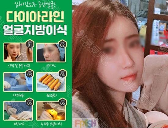 韩国芙莱思脂肪填充案例照
