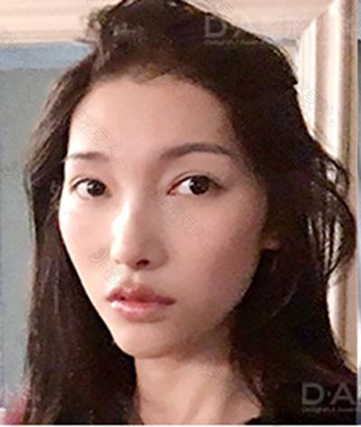 韩国DA医院轮廓手术前