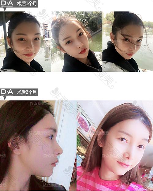 韩国DA整形医院面部轮廓两个月恢复照