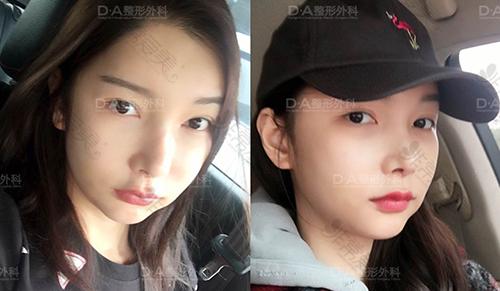 韩国DA医院面部轮廓恢复图