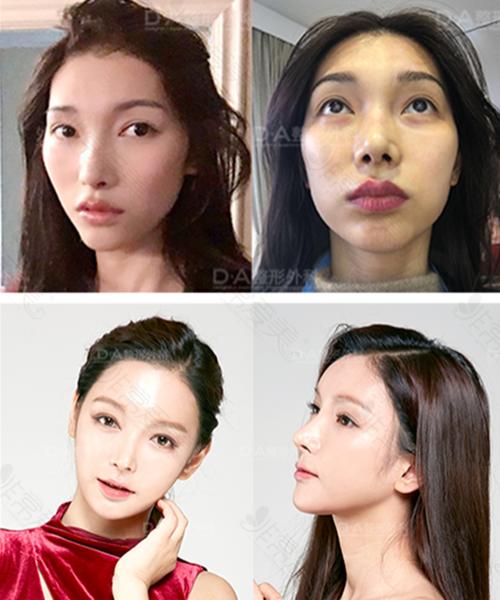 韩国DA整形外科面部轮廓手术案例