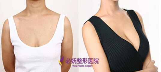 产后胸部下垂矫正